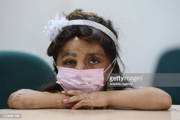 Syrian girl Hana Ama Dimo, whose body completely burned due to bomb thrown at her house in Syria, is seen after her tissue transplantation at the...