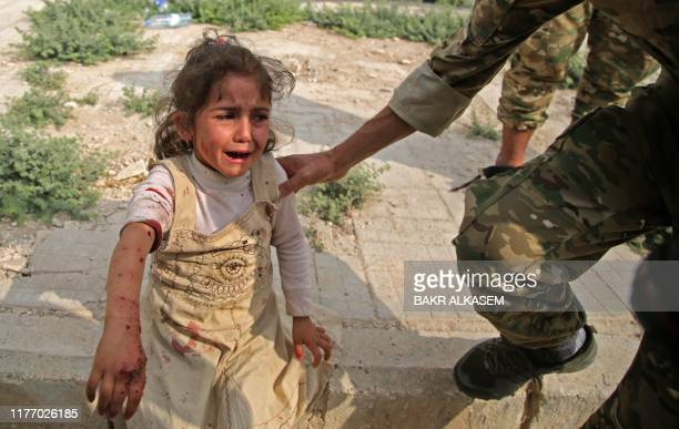Syrian girl reacts to her wounds on October 20 in the Syrian border town of Tal Abyad which was seized by Turkey-backed forces last week.