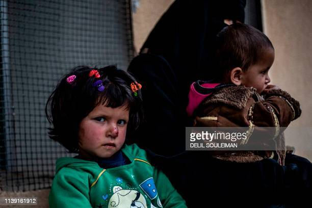 Syrian girl waits to receive treatment for leishmaniasis skin disease at a health centre in al-Karamah, in northern Syria, about 26 kilometres east...