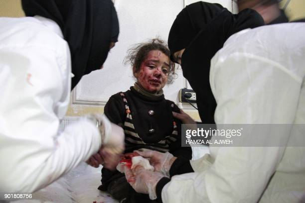 Syrian girl who was injured in bombardment cries as she receives treatment at a make-shift hospital in the besieged rebel-held town of Douma, on the...