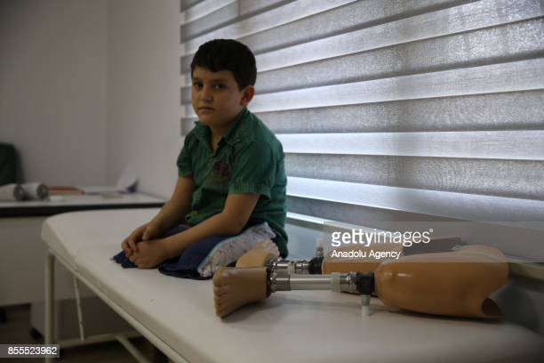 Syrian kid named Abdulbasit Alsattuf lost both of his legs in an airstrike carried out by Assad Regime Forces receives prosthetic legs in Reyhanli...