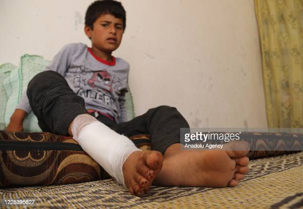 Syrian kid Samih Kalso, who was injured in a landmine explosion planted by Daesh when they occupied the region, is seen in al-Bab district of Idlib,...