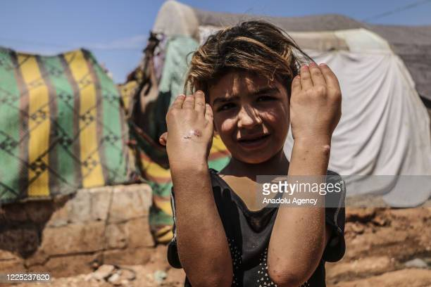Syrian kid suffering from leishmaniasis a parasitic disease spread by the bite of phlebotomine sandflies is seen in a refugee camp in Idlib Syria on...