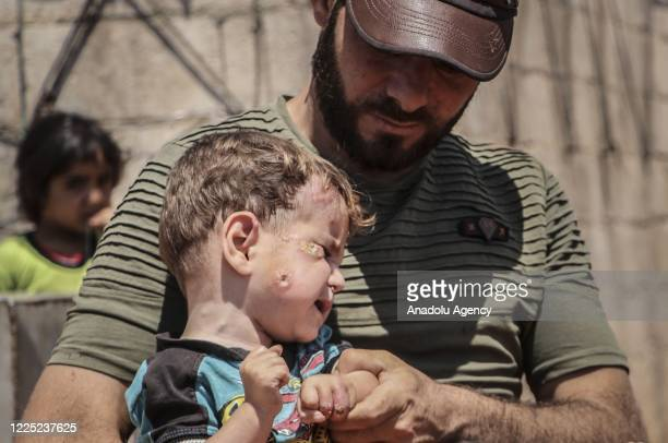 Syrian kid suffering from leishmaniasis, a parasitic disease spread by the bite of phlebotomine sandflies, is seen in a refugee camp in Idlib, Syria...