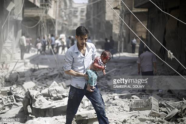 Syrian man carries a wounded baby following a reported air strike by Syrian government forces in the rebelheld area of Douma east of the capital...