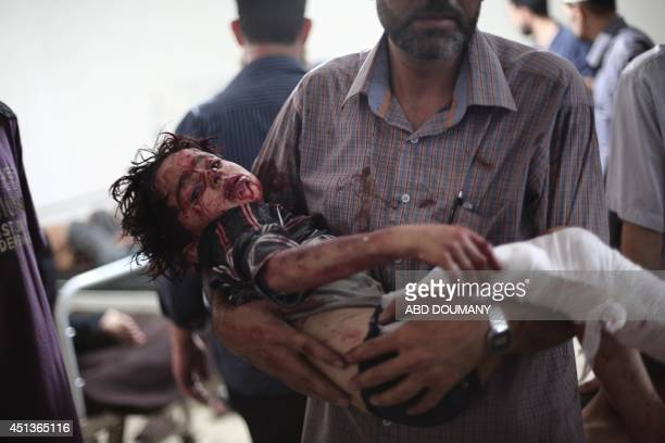 A Syrian man carries a wounded child at a makeshift hospital on June 28 following a reported car bomb explosion at a popular market in the rebelheld...