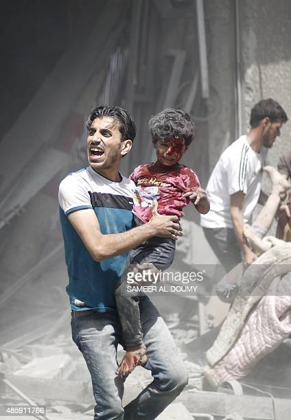 Syrian man carries a wounded child following a reported air strike by Syrian government forces in the rebelheld area of Douma east of the capital...