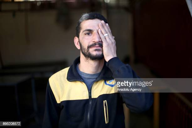 Syrian man holding hand cover his eye in support of Syrian baby Kerim who lost his left eye and his mother after Assad regime's attack on a...