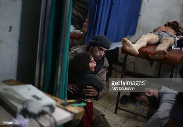 A Syrian man holds a wounded child as they wait for treatment at a makeshift clinic in the rebelheld area of Douma east of the capital Damascus...