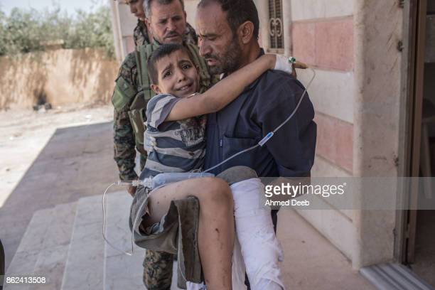 Syrian man holds his child who was injured by a mine which exploded when a group of civilians were escaping the Islamic State controlled areas of...