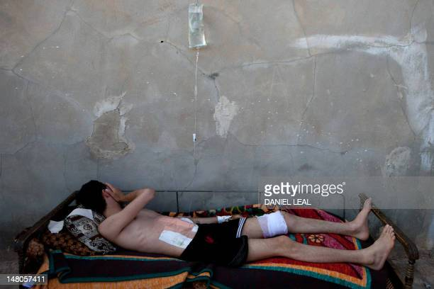 A Syrian man lies on a bed as he recovers from wounds in his stomach and leg made by the deflagration of a shell tank in Kfar Sajna in the...