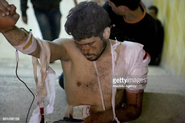Syrian man receives medical treatment at a hospital after Assad Regime's attacks over Eastern Ghouta's Zemelka town in Damascus Syria on March 19 2018