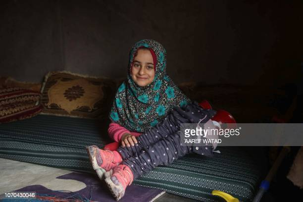 Syrian Maya Merhi holds her prosthetic legs inside a tent at the Internally Displaced Persons camp of Serjilla in northwestern Syria next to Bab...