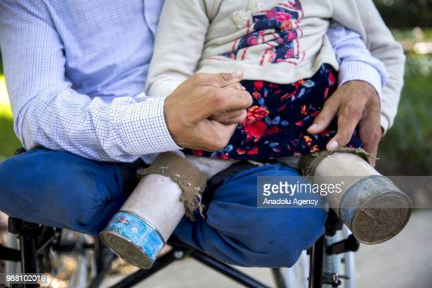 Syrian Maya Meri , who lost her legs during birth and since then started using artificial legs, which were made from pvc pipes and tin cans by her...