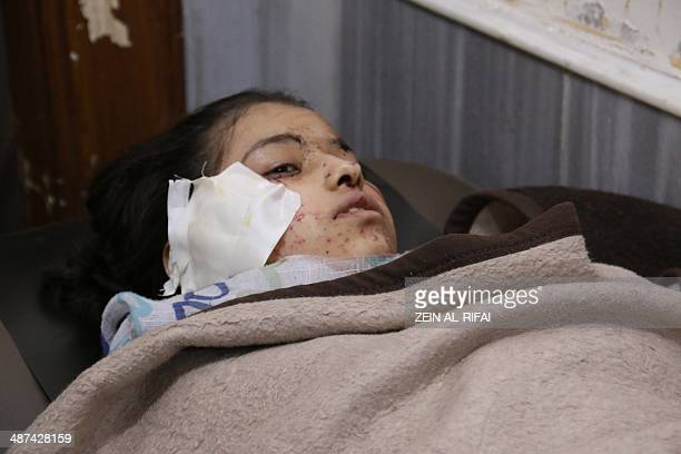 A Syrian young girl lays in a makeshift hospital bed after she was wounded in a reported air strike by government forces that hit the Ain Jalout...