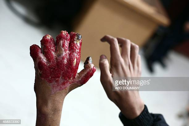 Syrian youth Ahmad displays his gangrenous hand an injury he sustained following an airstrike several months ago at a makeshift hospital in the...