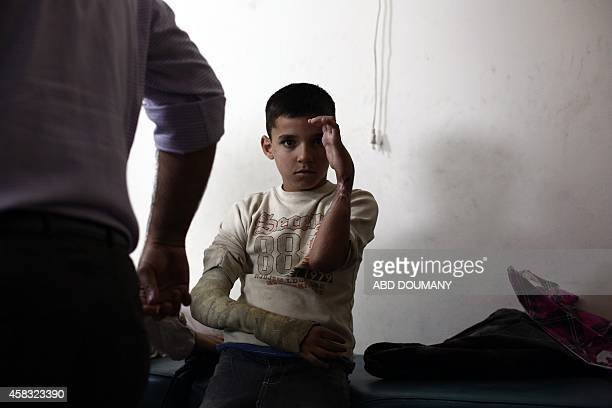 Syrian youth Bassam holds up his injured hand at a bone clinic as he awaits treatment for his hands that were severely damaged by shrapnel following...