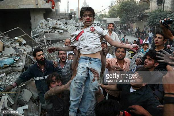 Syrians evacuate an injured boy following a reported air strike on a rebel-held town of Douma, northeast of the capital Damascus on June 16, 2015....