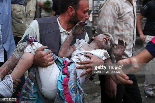 Syrians evacuate an injured girl following a reported air strike on a rebelheld town of Douma northeast of the capital Damascus on June 16 2015...