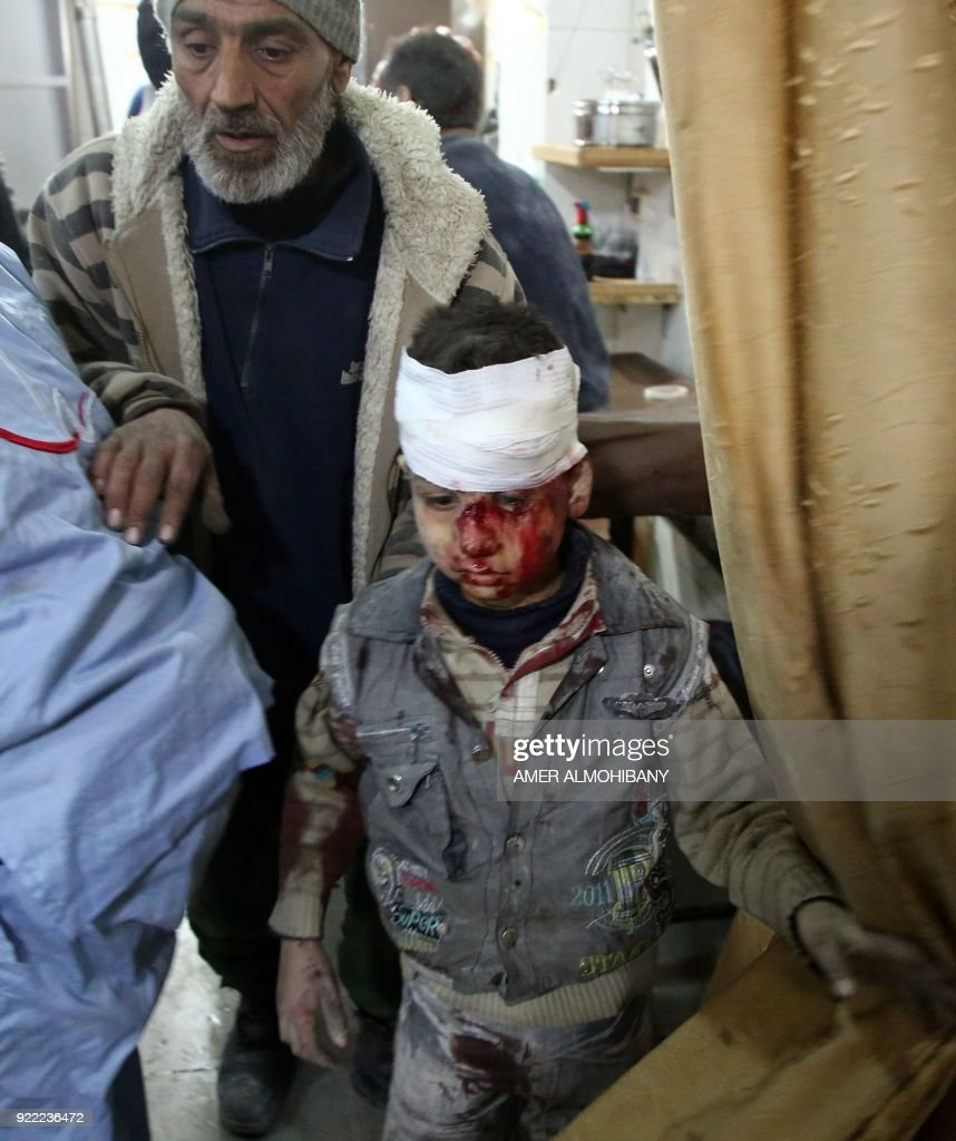 Syrians seek treatment at a make-shift hospital in Kafr Batna following Syrian government bombardments on the besieged Eastern Ghouta region on the outskirts of the capital Damascus on February 21, 2018. / AFP PHOTO / Amer ALMOHIBANY