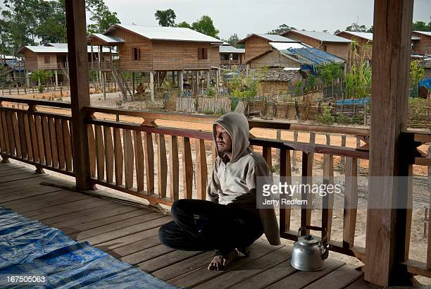Ta lost his eye and both his arms when a cluster bomblet he found exploded after he prodded it with a stick in 2001 Here he sits on the verandah of...