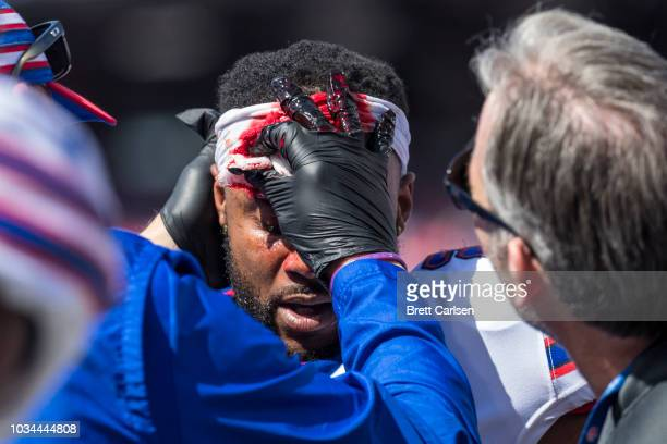 Taiwan Jones of the Buffalo Bills is seen to by trainers to stop bleeding of his head after he was struck without his helmet during a special teams...