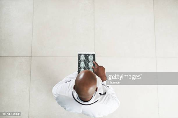 taking neurology to the next level with smart apps - diagnostic medical tool stock pictures, royalty-free photos & images