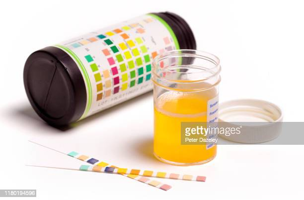 taking urine sample - skill stock pictures, royalty-free photos & images