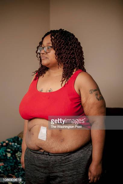 Tamika Arnold Capone's stands for a portrait at her home She was hit by a drunk driver in 2011 and the accident kept her from being mobile and led to...