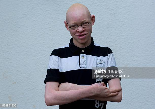 Tanzania East Africa Dar es Salaam adam robert a boy with albinism at under the same sun house he had three fingers cut