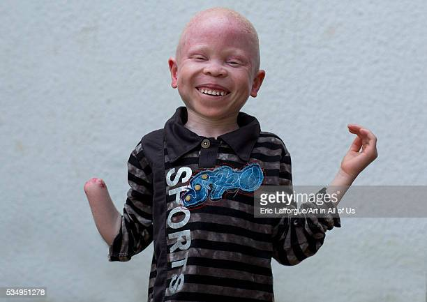 Tanzania East Africa Dar es Salaam baraka cosmas a boy with albinism at under the same sun house he lost his right hand in a witchcraft attack