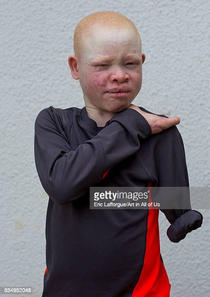 Tanzania East Africa Dar es Salaam emmanuel festo a boy with albinism at under the same sun house his left arm was hacked off above the elbow he lost...