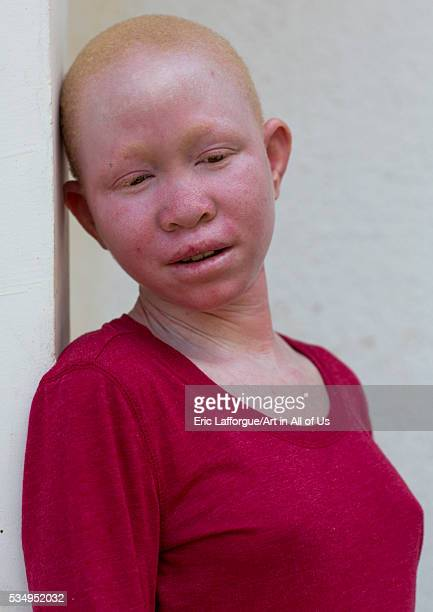 Tanzania East Africa Dar es Salaam pendo serengema a girl with albinism at under the same sun house she lost her right arm