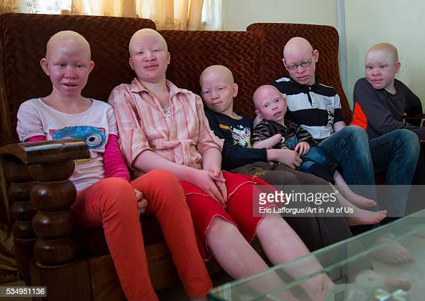 Tanzania East Africa Dar es Salaam teens and children with albinism at under the same sun house