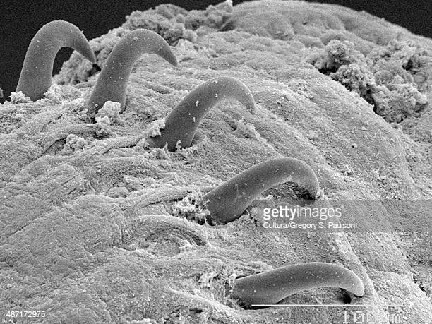 tapeworm (cestoda) scolex sem - tapeworm stock photos and pictures