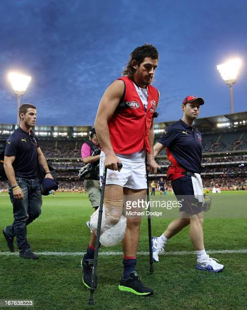 Taylor Walker of the Crows walks off on crutches after injuring his leg during the round five AFL match between the Carlton Blues and the Adelaide...