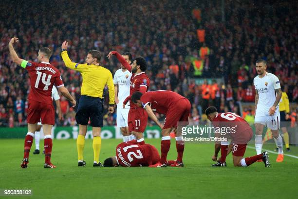 Team mates call for a stretcher after Alex OxladeChamberlain of Liverpool injures his knee during the UEFA Champions League Semi Final First Leg...
