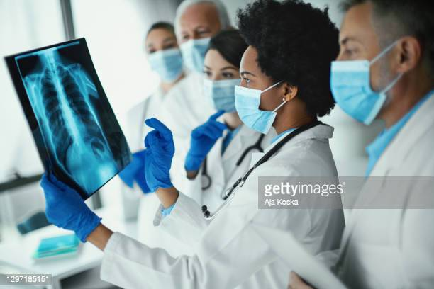team of doctors analyzing an x-ray image of a covid-19 patient. - scientific imaging technique stock pictures, royalty-free photos & images