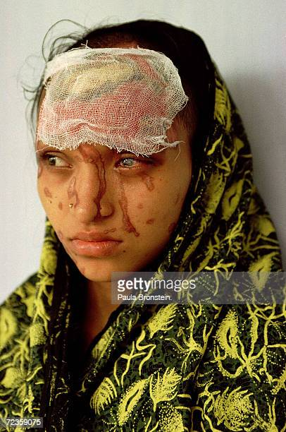 Tears run uncontrollably from Asma's eyes July 2000 in Dhaka Bangladesh because of severe damage from a battery acid attack by her boyfriend two...