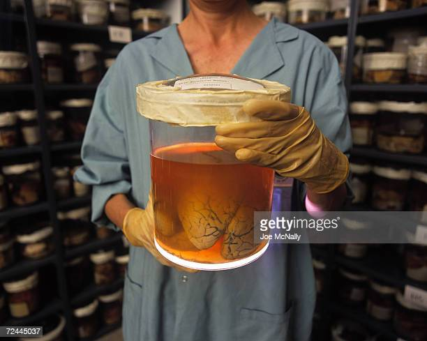 UNDATED A technician holds a specimen at the Brain Bank at Johns Hopkins in 1995 in Baltimore Maryland The brain which makes us distinctly human is...