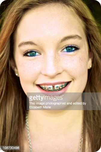 Teen Girl With Green Eyes And Braces Stock Photo Getty