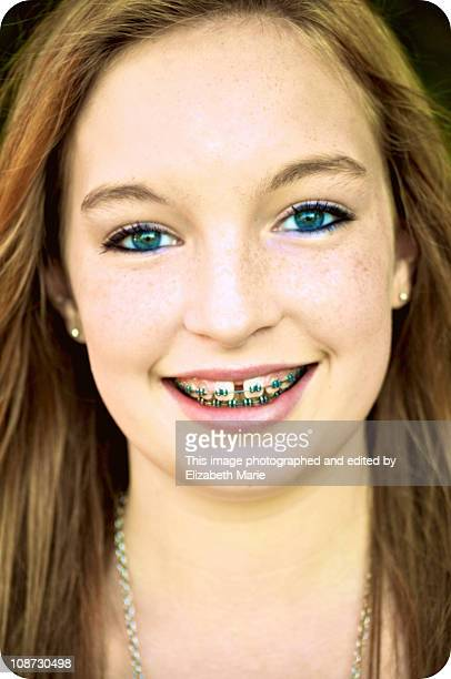 teen girl with green eyes and braces - only teenage girls stock pictures, royalty-free photos & images