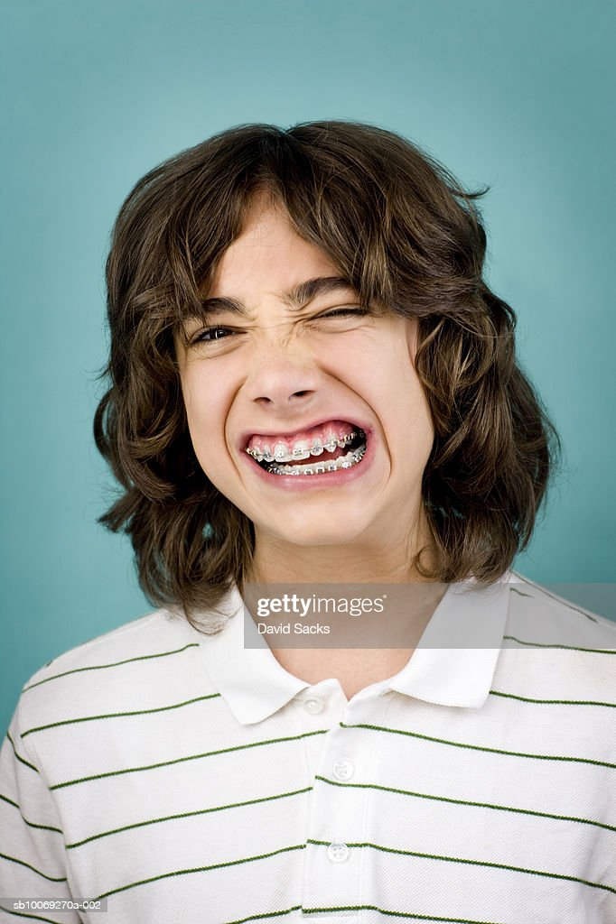 Teenage boy (14-15) with braces, portrait, close-up : Stockfoto