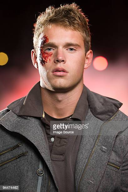 teenage boy with facial injuries - bloody car accidents stock pictures, royalty-free photos & images