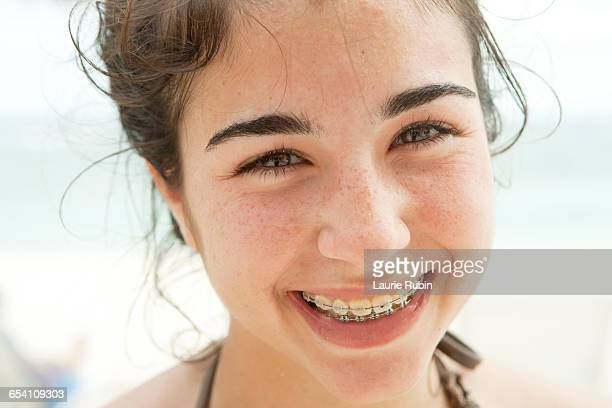 Teenage girl with Braces -Arielle