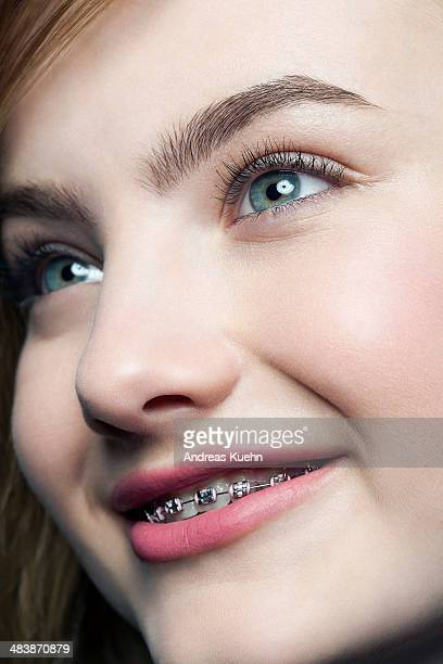 teenage girl with braces smiling, cropped. - beautiful girl smile braces vertical stock photos and pictures