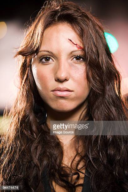 Teenage girl with facial injuries