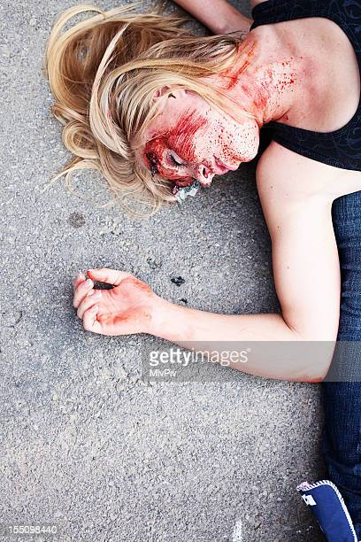 Teenage girl with head injury