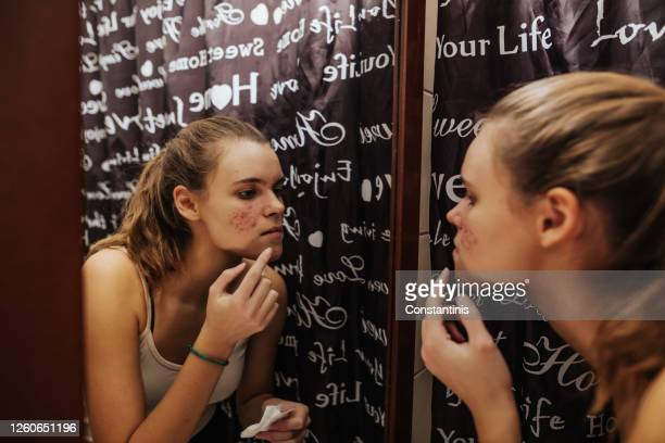 teenage problems - hormone stock pictures, royalty-free photos & images