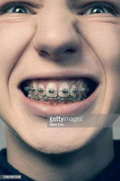 Teenager overly grinning exposing braces